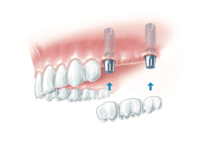 implant dentar cativa-dinti-lipsa
