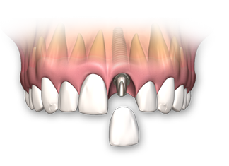implant-dentar-un-singur-dinte