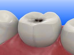 caria dentara odontologie
