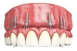 cat timp rezista implanturile dentare