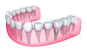 cum se efectueaza un implant dentar