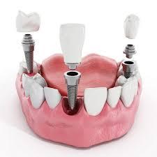 implant dentar avantaje