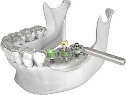 implant dentar riscuri