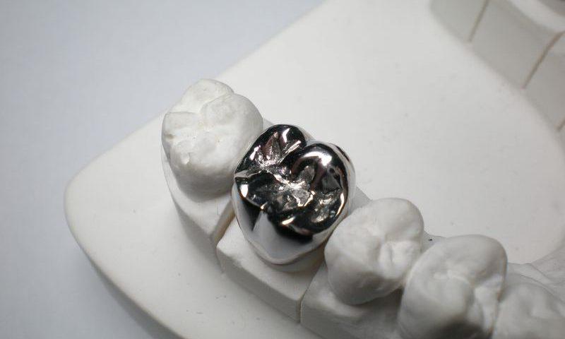 coroana-metalo-acrilica-pret